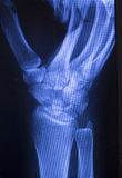 Hand injury fingers xray scan Stock Images