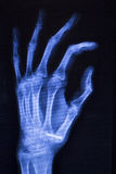 Hand injury fingers xray scan Stock Photography