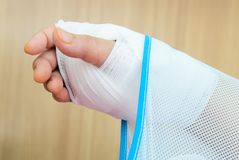 Hand injury Stock Photography