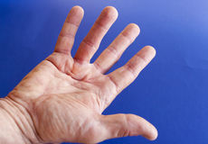 Hand of an man with Dupuytren contracture on blue Stock Images