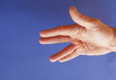 Hand of an man with Dupuytren contracture on blue Royalty Free Stock Photo