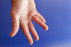 Hand of an man with Dupuytren contracture on blue Stock Photography