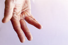Hand of an man with Dupuytren contracture Stock Image