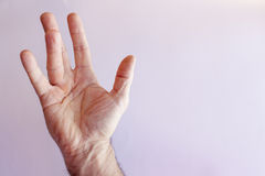 Hand of an man with Dupuytren contracture Royalty Free Stock Photography