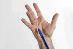 Hand of an man with Dupuytren contracture Stock Photography