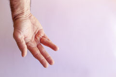 Hand of an man with Dupuytren contracture on white Stock Images