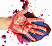 Hand of man injured wound from accident Royalty Free Stock Photo