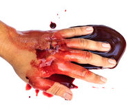Hand of man injured wound from accident Royalty Free Stock Photography