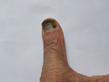 Hand of a man with nail fungus Royalty Free Stock Photo