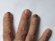 Hand of a man with nail fungus Stock Image