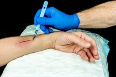 Hand med den blåa medicinska handsken som rymmer en skalpell som gör ett snitt på en arm Royaltyfri Fotografi