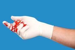 Hand med den blodiga kirurgiska handsken royaltyfria foton