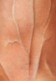 Hand med svullna åder Royaltyfria Bilder