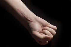 Hand met een litteken Stock Fotografie