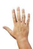 Hand met wratten die op wit worden geïsoleerd, Stock Foto's