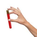 Hand mit der Blutprobe lokalisiert auf Weiß Stockbilder