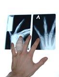 Hand mit Röntgenstrahlfoto lizenzfreie stockbilder
