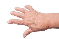 Hand mit rheumatoider Arthritis Stockbild