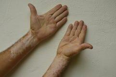 Hand mit Vitiligozuständen Stockfotos