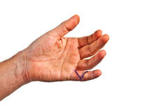 Hand with an operation wound at Stock Photo