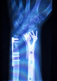 Hand orthopedics xray scan. Hand, fingers and thumb hospital x-ray scan test results for joint pain and injury with orthopedic plate and screws titanium implant Royalty Free Stock Images