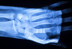 Hand orthopedics xray scan. Hand, fingers and thumb hospital x-ray scan test results for joint pain and injury with orthopedic plate and screws titanium implant Royalty Free Stock Photo