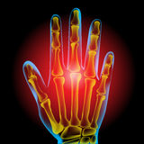 Hand pain Royalty Free Stock Images