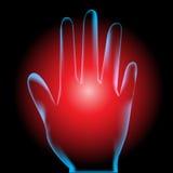 Hand pain Royalty Free Stock Photo