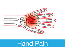 Hand pain outline. Outline of hand and bone which have pain on wrist. This is medical illustration Royalty Free Stock Photography