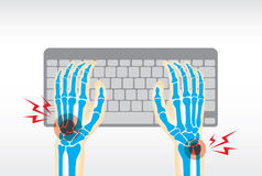 Hand pain from use keyboard. Working with keyboard long time is cause of pain at hand, wrist, bone, joints and muscle Stock Photos