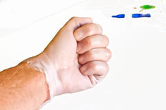 Hand physiotherapy to recover Royalty Free Stock Image
