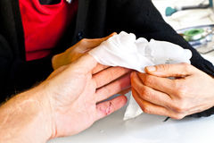 Hand physiotherapy to recover a broken finder. Medical hand physiotherapy to recover a broken finder Stock Photos