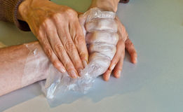 Hand physiotherapy to recover a. Broken finger Royalty Free Stock Photography