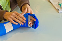 Hand physiotherapy to recover a. Broken finger Stock Photos