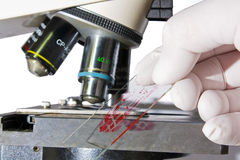 Hand placing blood sample under microscope Royalty Free Stock Photos