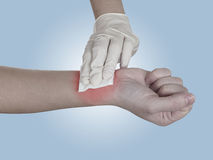 Hand pressing gauze on arm after administering an injection. Royalty Free Stock Photography
