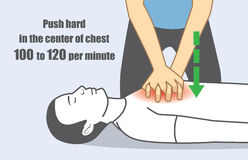 Hand push hard and fast in the center of chest. Hand push hard and fast in the center of chest 100 to 120 per minute. Illustration about perform CPR for person Stock Photography