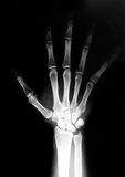 Hand radiograph. Open hand radiography royalty free stock photography