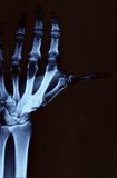 Hand radiography. Left hand radiography with wrist and upper arm Royalty Free Stock Photography