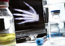 Hand radiography in hospital royalty free stock images