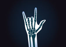 Hand X-ray while doing love sign. Stock Photography