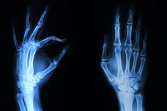 Hand x-ray. Hand and fingers  xray picture Stock Photo