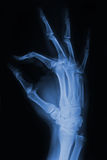 Hand x-ray. Hand and fingers  xray picture Royalty Free Stock Photo