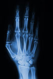 Hand x-ray. Hand and fingers  xray picture Royalty Free Stock Image