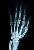 Hand x-ray mening stock fotografie