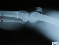Hand x-ray view Royalty Free Stock Image