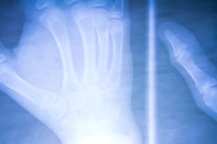 Hand x-ray view Royalty Free Stock Images