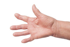 Hand With Rheumatoid Arthritis. Hand Of old Woman Deformed From Rheumatoid Arthritis Royalty Free Stock Image