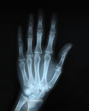 Hand rontgen Royalty Free Stock Image