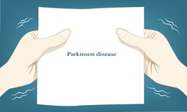Hand shaking automatic is a cause of Parkinson disease. It will  start little and hard shake on long term vector illustration